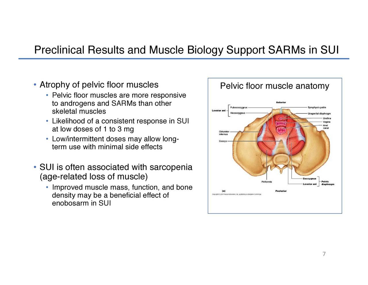 GTx (GTXI) Stress Urinary Incontinence - Slideshow